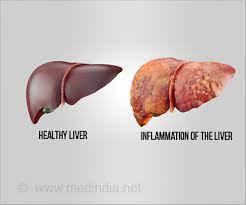 liver liver damage alcoholism herbal tcm supplement